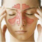 điều trị nhức đầu do viêm xoang
