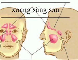 viem-xoang-sang-sau