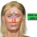 viem-xoang-man-tinh