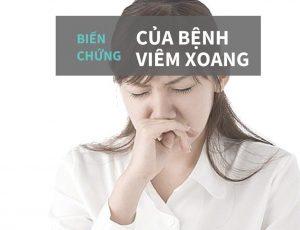 bien-chung-cua-benh-viem-xoang