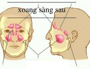 dau-hieu-viem-xoang-sang-sau